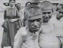 Armenian famine victim. The famine affected all.
